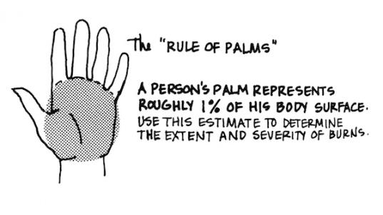 RuleOfPalms